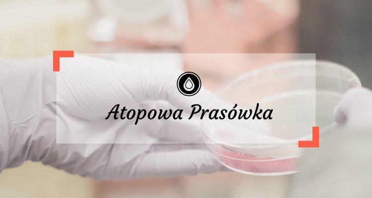 Atopowa prasówka 2/2017 | Ustekinumab – leczenie biologiczne AZS