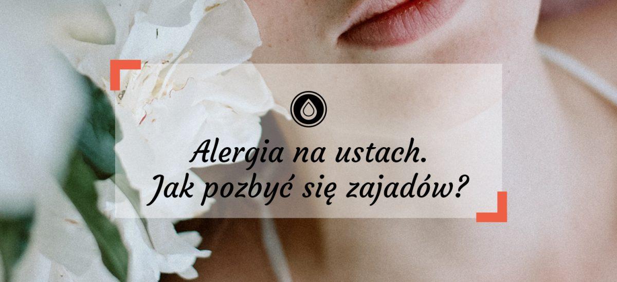 Alergia na ustach. Jak pozbyć się zajadów?