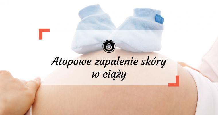 Atopowe zapalenie skóry w ciąży – jak miała się moja skóra w tym czasie?